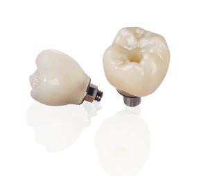 Page Image - Screw Retained 2